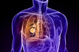 Tumore al polmone: dimostrato ruolo chiave di un oncogene
