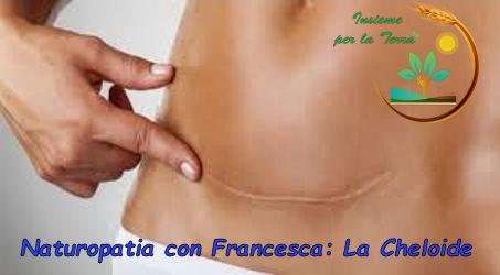 #Naturopatia con Francesca: La #cheloide, la conosciamo?