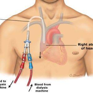 Gestione del Catetere Venoso Centrale: ruolo dell'infermiere