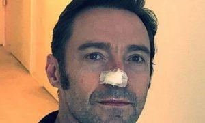 Hugh Jackman, nuova operazione per un tumore della pelle: l'appello shock