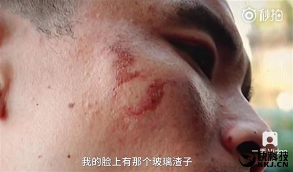 iPhone 7 esplode sulla faccia di un uomo mentre effettua una registrazione video